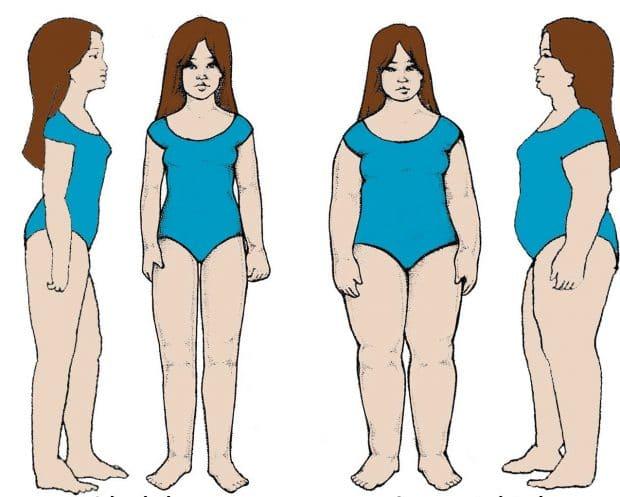 Тип женской фигуры лимфатический
